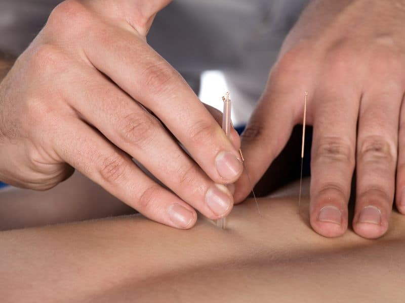 Accupuncture on man's back