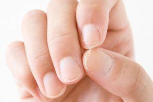 Damaged nails