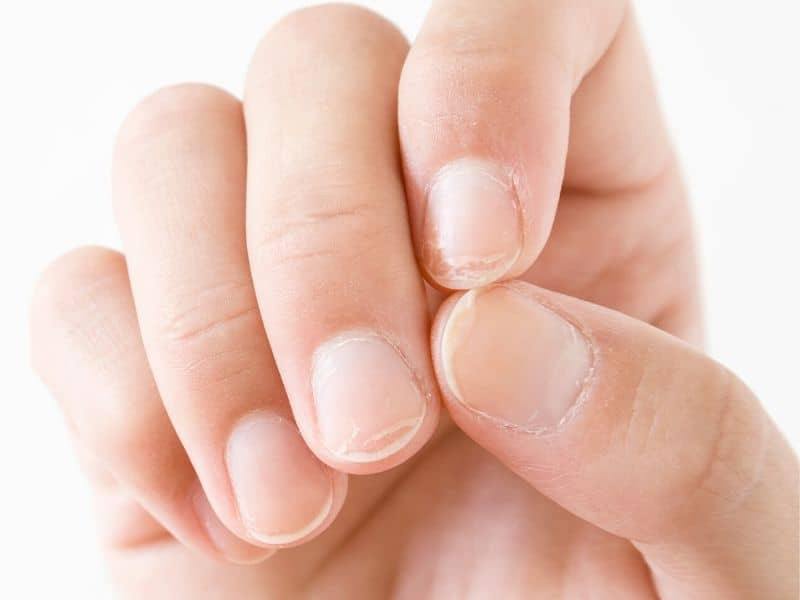 Damaged nails