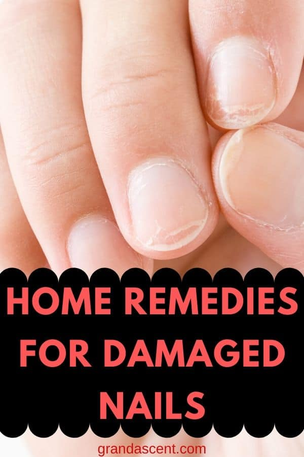 Home Remedies For Damaged Nails